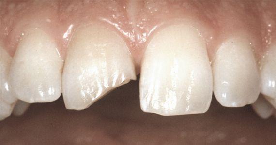 Видеть во сне сломанные зубы у себя. Приснились сломанные зубы: знак скорых перемен